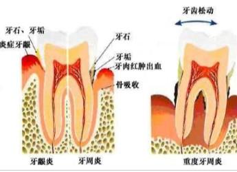 牙菌斑拜拜——德国 SEEUDAY刷出洁白牙齿